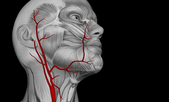 Задняя трифуркация левой внутренней сонной артерии. Сосудистые заболевания головного и спинного мозга.